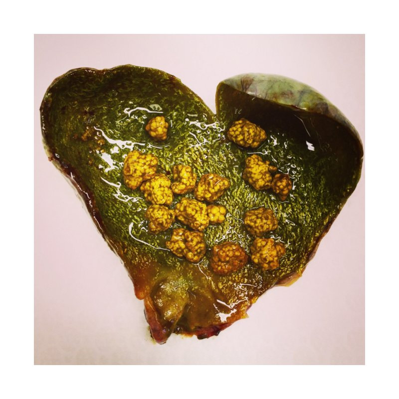 Gallstone Love by Dura Mater